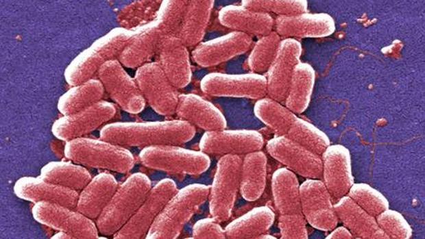 Fotografía de bacterias «Escherichia coli»