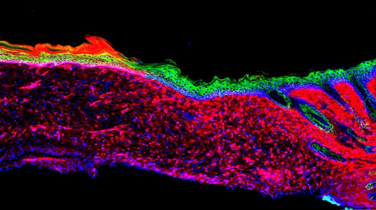 Científicos españoles regeneran la piel sin usar injertos