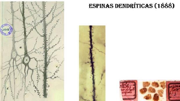 Dibujo original de Cajal de las espinas dendríticas (izquierda) y foto tomada por Juan A. de Carlos, del Instituto Cajal, (Centro) depreparaciones originales de Cajal, impregnadas con el métododeGolgi