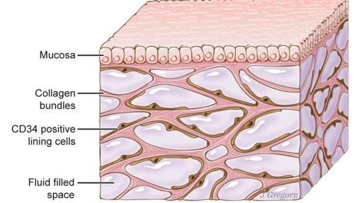 El intersticio, representado en la imagen, está bajo la piel y recubre pulmones, vasos sanguíneos, músculos, etc