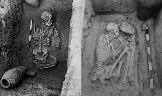 A la izquierda, un esqueleto de una persona con acondroplasia; a la derecha, una persona sin esta patología