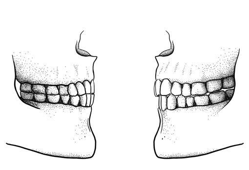 Diferencia entre la mordida del Paleolítico (izquierda), con los dientes superiores e inferiores alineados, y la moderna (derecha), con los dientes superiores adelantados