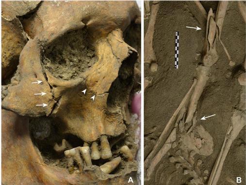 Cráneo del más viejo de los soldados, de 50 años, que recibió un golpe que le aplastó mandíbula y pómulo. A la derecha otro soldado con mala suerte. Un disparo le partió la tibia y al caer el fémur se quebró