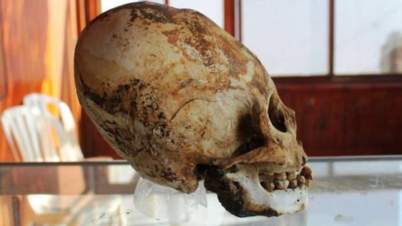 Así eran los rostros de los pobladores de Tiahuanaco que deformaban sus cráneos al poco de nacer