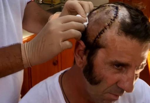 Costurón de Juan José Padilla tras sufrir arrancamiento del cuero cabelludo