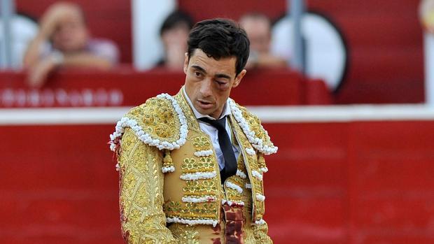 Paco Ureña, tras la cornada en Albacete en septiembre