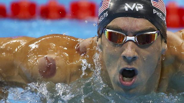 Río 2016 | Natación:  ¿Por qué tiene Phelps esos moratones en hombro y espalda?