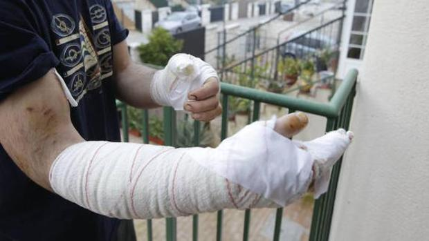 Le han dado más de 30 puntos para curar las heridas del ataque, que duró 25 minutos