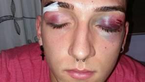 Uno de los waterpolistas agredidos: «Pensé que iba a morir por 20 euros»