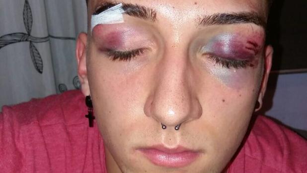 Pavón muestra las heridas que tiene en la cara