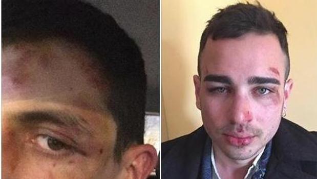 Hemeroteca: Agreden a dos chicos en Berga (Barcelona) por besarse en público | Autor del artículo: Finanzas.com