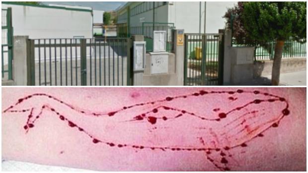 Arriba, uno de los colegios donde se ha detectado el peligroso juego; debajo, heridas en un brazo, autoprovocadas por la «Ballena Azul»