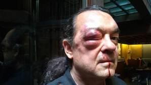 «Han enviado un sicario a mi casa para matarme», afirma Fernando Barredo tras la brutal agresión