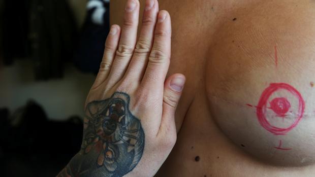 Un tatuaje para superar el cáncer de mama: «Siento que vuelvo a ser yo»