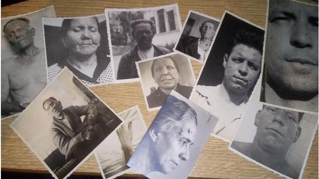 Imagen del lote de fotos y fichas de enfermos de lepra que vende un usuario en internet