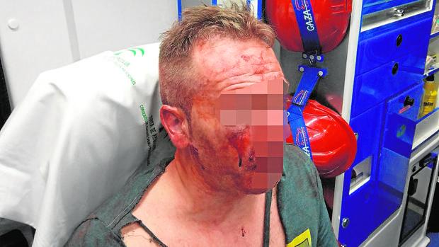 El policía agredido en Córdoba