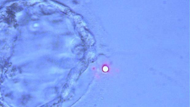 Imagen real de un blastocisto