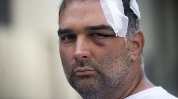 El turista estadounidense, tras sufrir la agresión en plaza Cataluña