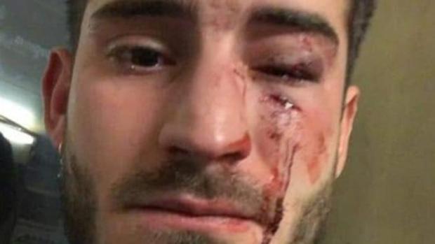 El joven ha compartido en redes sociales las heridas que le ha causado la brutal agresión
