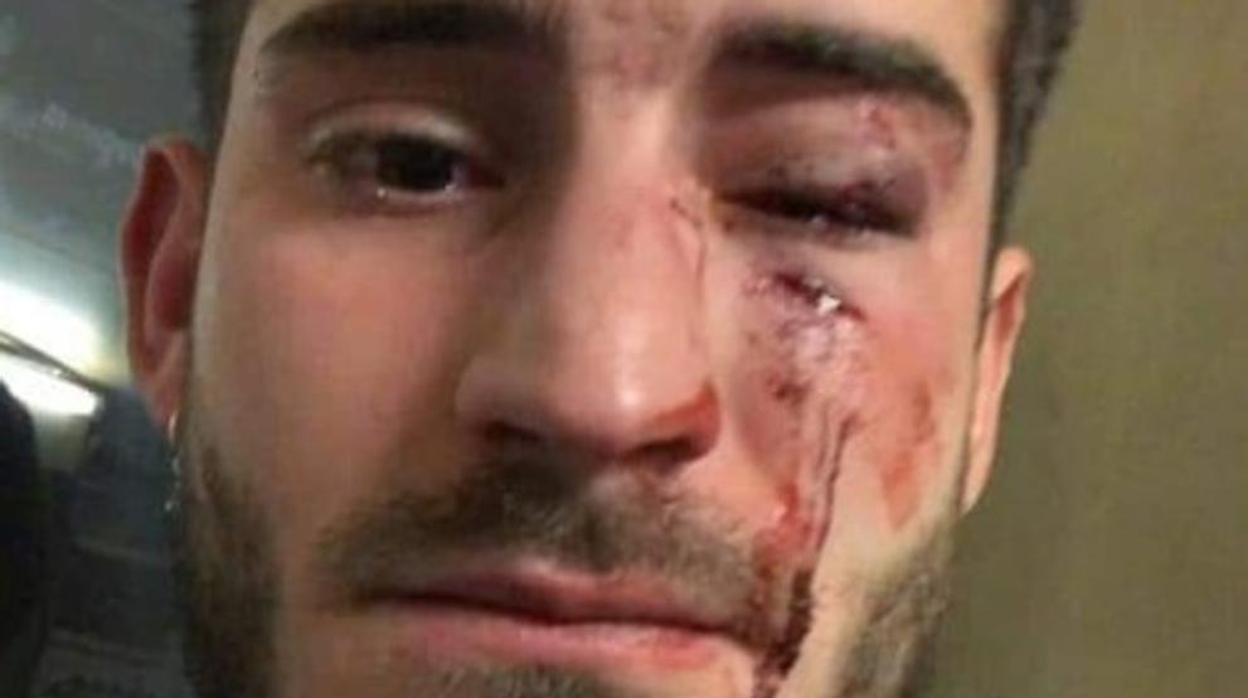 Los detenidos por una agresión homófoba en el metro de Barcelona pasan a disposición judicial