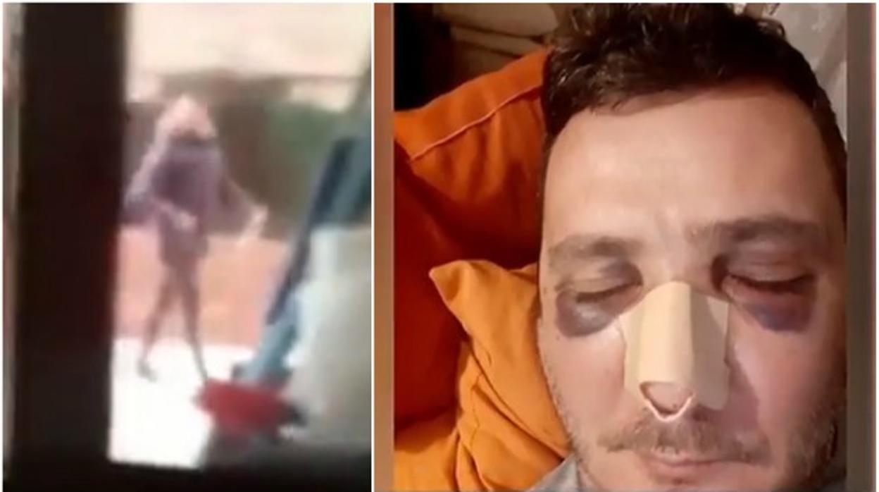 Un repartidor de Amazon le rompe por tres sitios la nariz a un conserje