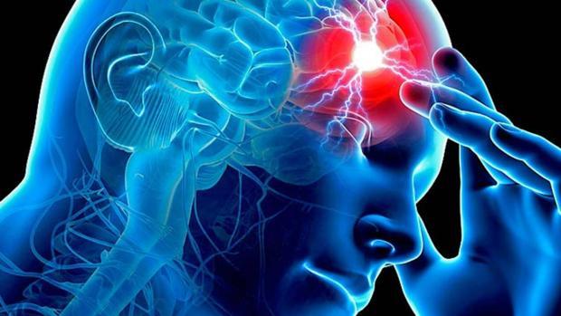 El ictus es una enfermedad cerebrovascular que afecta a los vasos sanguíneos que suministran sangre al cerebro