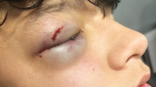 Imagen del ojo del menor, de 15 años, tras el ataque