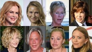 Cirugía estética de terror: máscaras para todo el año