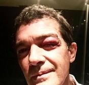 Antonio Banderas sufre un accidente