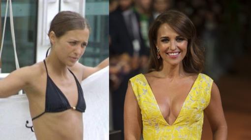 Paula antes y después de su operación de pecho