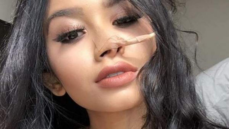 Muere Nara Almeida, la modelo brasileña que relató su lucha contra el cáncer en Instagram