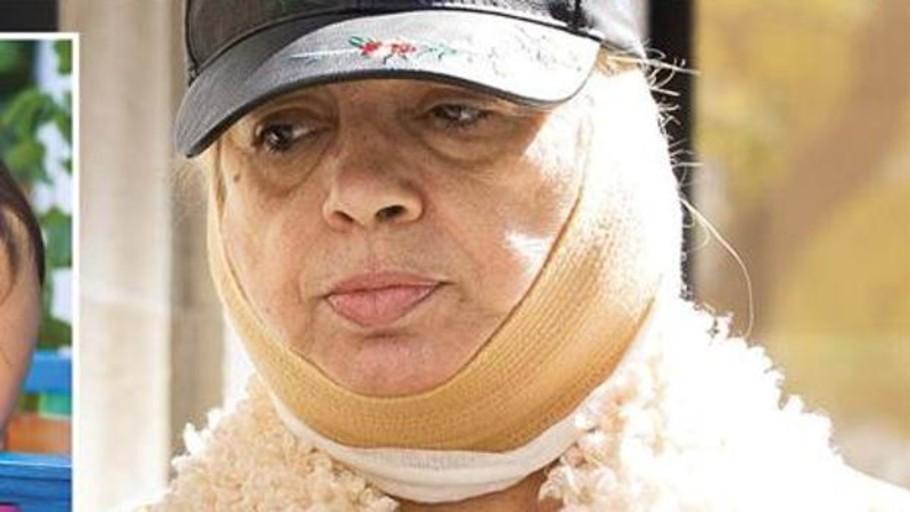 Carmen Borrego sufre complicaciones: «Se me ha descolgado el músculo de la papada»