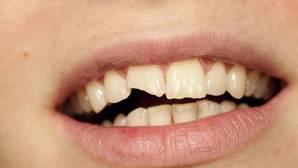 «A mi hijo se le ha roto un diente, ¿qué hago?»