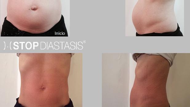 Diástasis abdominal, un problema que sufren el 80% de las mujeres ...