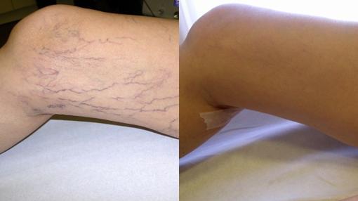 Los expertos advierten que aunuq ela mejora es visible tras un tratamiento, no es defiinitiva