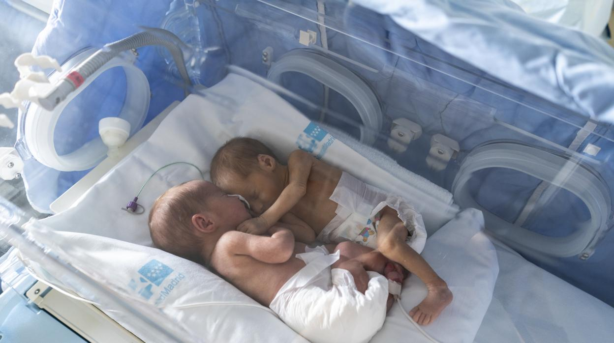 db6471800 Día Mundial del Niño Prematuro  «Una simple caricia puede provocarles una  taquicardia que no sepan cómo compensar»