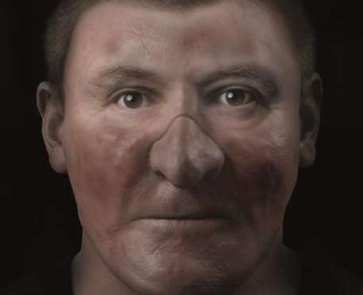 La cara de Robert I Bruce, castigada por la lepra