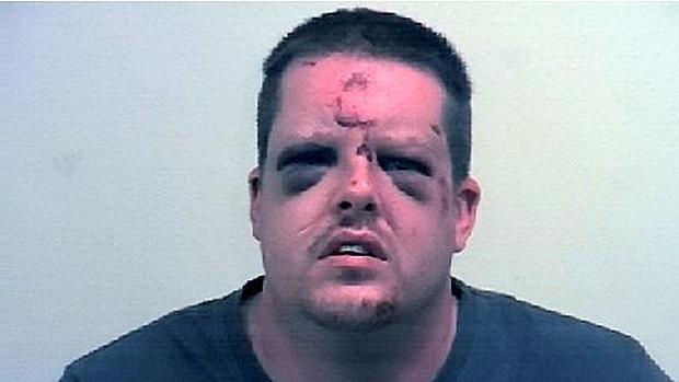 El agresor tras haber sido golpeado y mordido por su víctima