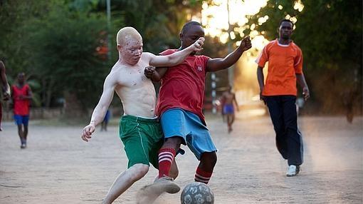 Los albinos tienen que luchar en África de forma diaria contra la marginación