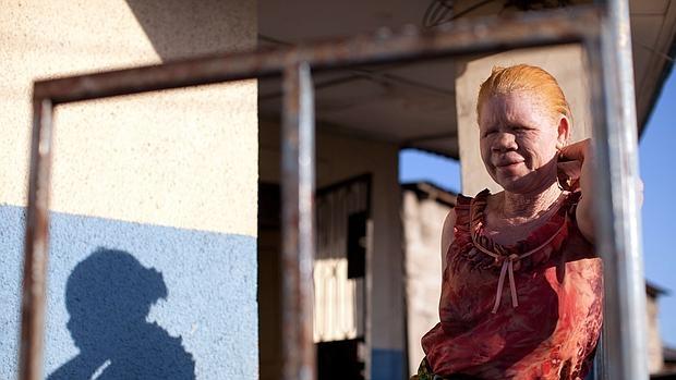 La persecución del albinismo en África, entre la brujería y las responsabilidades políticas