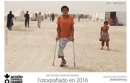 El hambre, una de las armas de guerra más mortíferas de 2016