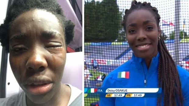 Los asaltos racistas en Italia llegan a una atleta de élite
