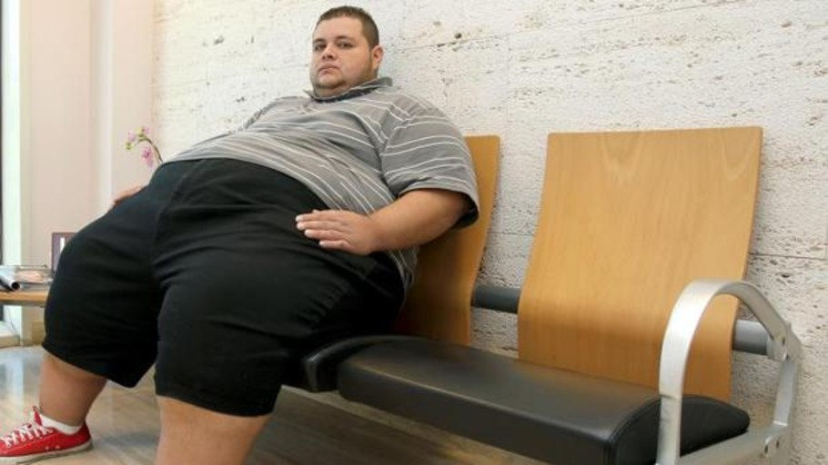 Obesidad: la clave está en tu cerebro