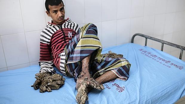 Abul Bajandar tiene diagnosticada una epidermodisplasia verrucimorfe que está afectando a sus extremidades de form a muy radical
