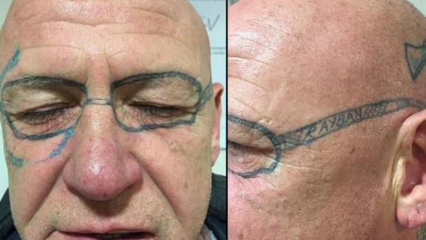 Un Hombre Tarda Dos Años En Quitarse El Tatuaje De Unas Gafas Que Se