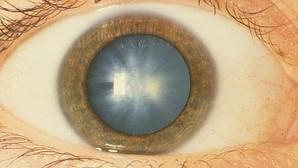 Devolver la visión gracias a las células madre