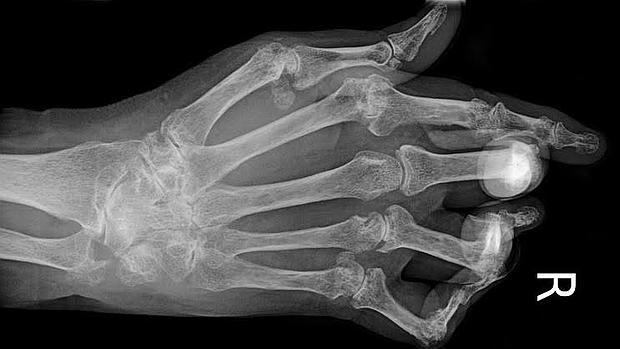 Radiografía de la mano de un paciente con artritis reumatoide