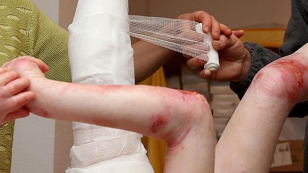 Una cura de una niña con «piel de mariposa», a la que vendan brazos y piernas para proteger las heridas