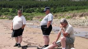 Asocian la psoriasis con la obesidad