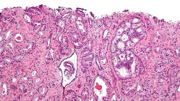 testosterona cancer de prostata